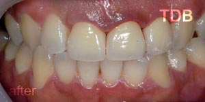 upper dental crown
