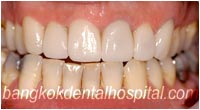dental makeover : dental crowns