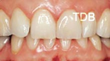ips empress veneers