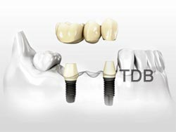 Branemark System implants
