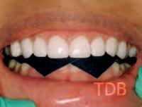 Finishing Lumineers veneer treatment