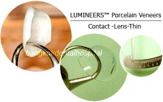 lumineers porcelain veneers dental clinic in bangkok thailand