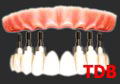 Teeth-in-an-Hour, all-on-4+NobelGuide+Titanium+Acylic bridges