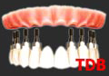 Teeth-in-an-Hour,NobelReplace implants Groovy+Titanium framework+porcelain bridges